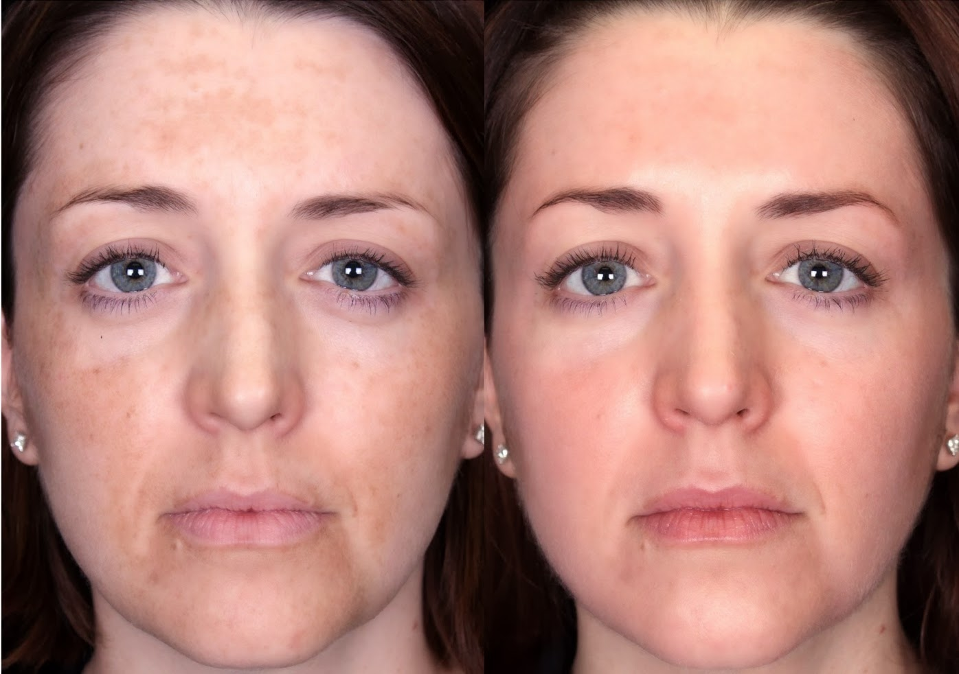 chemical peels before-and-after